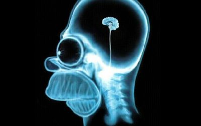 African Leader Brain X-Ray